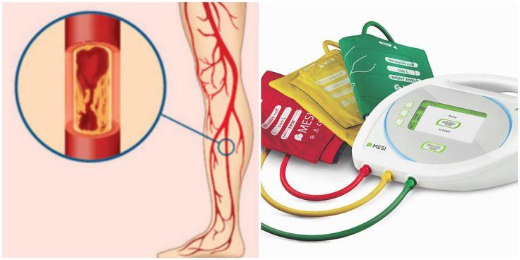 Boala arterială periferică (BAP) este o afecțiune de care suferă multe persoane, fără însă a bănui acest lucru. Este importantă constietizarea, deoarece BAP este un factor de risc in aparitia unui infarct miocardic sau accident vascular cerebral. In stabilirea diagnosticului, masurarea indicelui-glezna brat este esentiala. Mai mulote informatii aici: http://goo.gl/BWO1QK