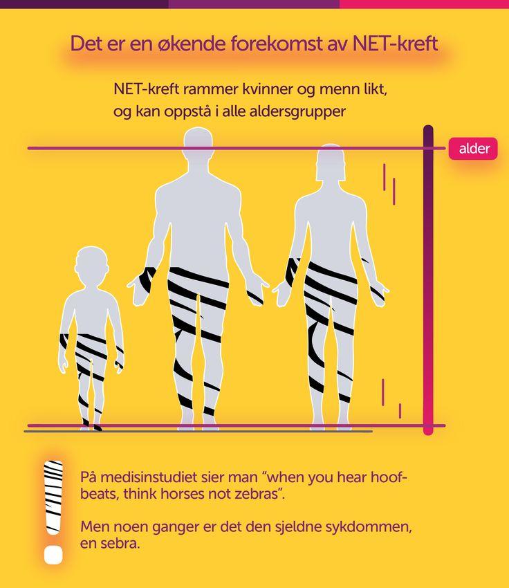 NET-kreft rammer menn, kvinner og barn