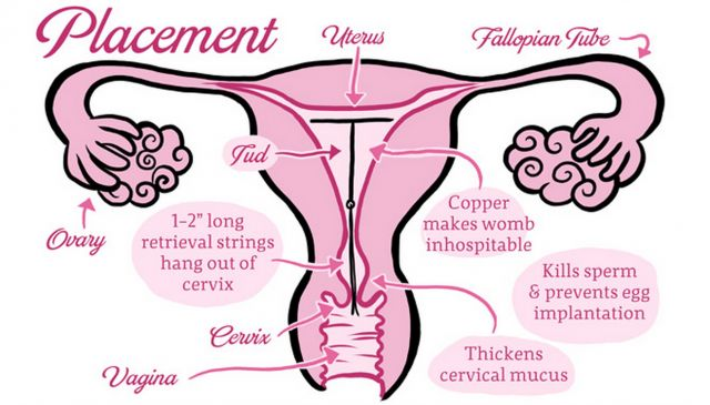 What Is The Reason The Cervix Is Just 1 Inch From The Manual Guide