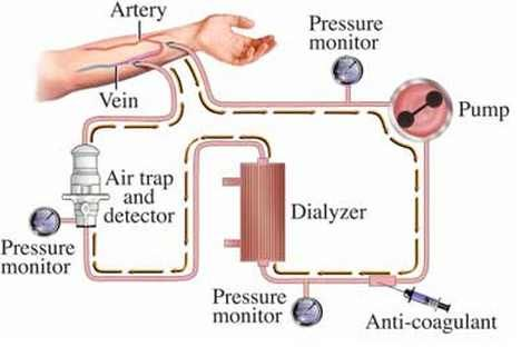 Hemolytic Uremic Syndrome Treatment Pictures