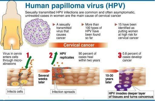 Human papillomavirus infection long term effects, Genital hpv long term effects.