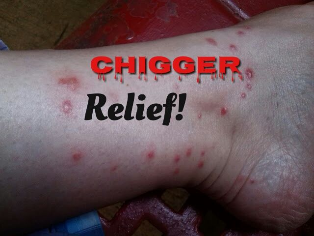 Relief for chigger bites. You seriously want to pin this for later!!!!