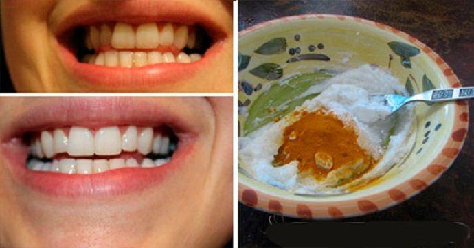 Este incrível clareameamento dental fortalece os dentes e deixa-os com um branco maravilhoso | Cura pela Natureza