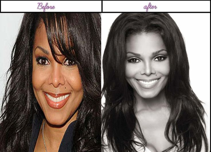 Pictures Janet Jackson Immediately After She Undergone Plastic Sugery In 2014 - http://www.aftersurgeryjob.com/pictures-janet-jackson-immediately-undergone-plastic-sugery-2014/