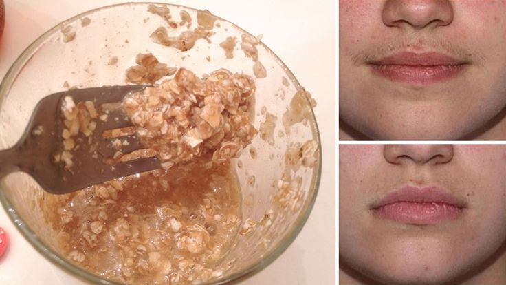 How To Get Rid Of Facial Hair Naturally at Home http://homeremediestv.com/how-to-get-rid-of-facial-hair-naturally-at-home/ #HealthCare #HomeRemedies #HealthTips #Remedies #NatureCures #Health #NaturalRemedies  An issue that plagues many women is facial hair. For obvious reasons women go to extreme measures and spend lots of money to ensure that the hair is   Related Post  6 Proven Home Remedies for Hair Loss Young or old we love our hair donít we? Hair condition plays a deciding role in…