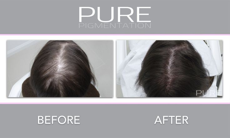 Scalp Micropigmentation for woman to disguise thinning and bald patches. #hairloss #womanshairloss #alopecia #smp #scalptreatments