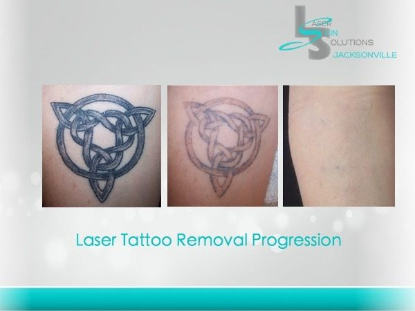 17 best images about tattoos and laser removal on for Absolute laser tattoo removal