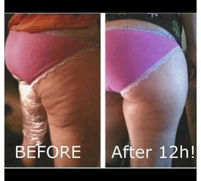 Dangers of weight loss in the elderly picture 1