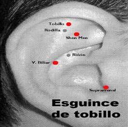 ASOCIACION INTERNACIONAL ACUPUNTURA TRADICIONAL VADEMACUM ORIENTATIVO PROF. DR. FERNANDO LURUEÑA: E
