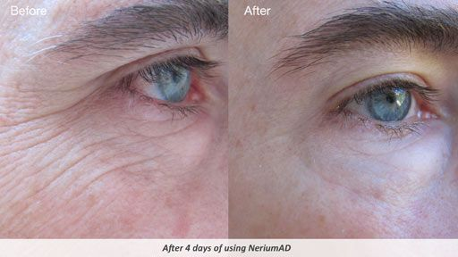 Real Results NeriumAD! Great Anti-aging product. Gluten free, paraben free! Amazing results!