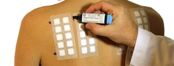 A patch test is a method used by Alta Dermatology to determine whether a specific substance causes allergic inflammation of a patient's skin.
