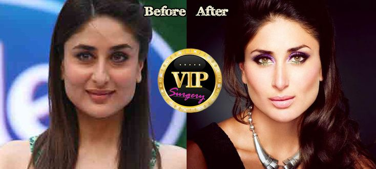 Kareena Kapoor Plastic Surgery NEWS!  Before and After Pictures