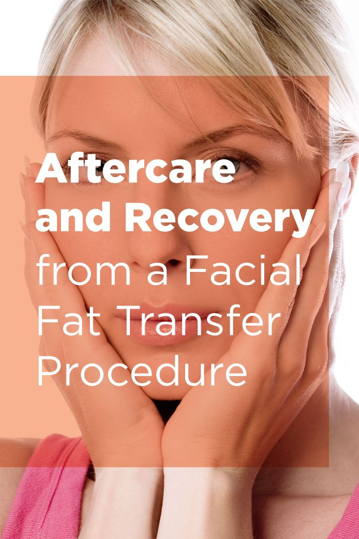 Aftercare and Recovery from a Facial Fat Transfer Procedure | Fat transfer surgery is an outpatient procedure and can be performed using local anesthesia with light sedation, and typically requires approximately 1 hour of procedure time. Here are some things to expect after a facial fat transfer procedure