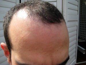 FUE Hair Transplant for Better Hair Transplantation