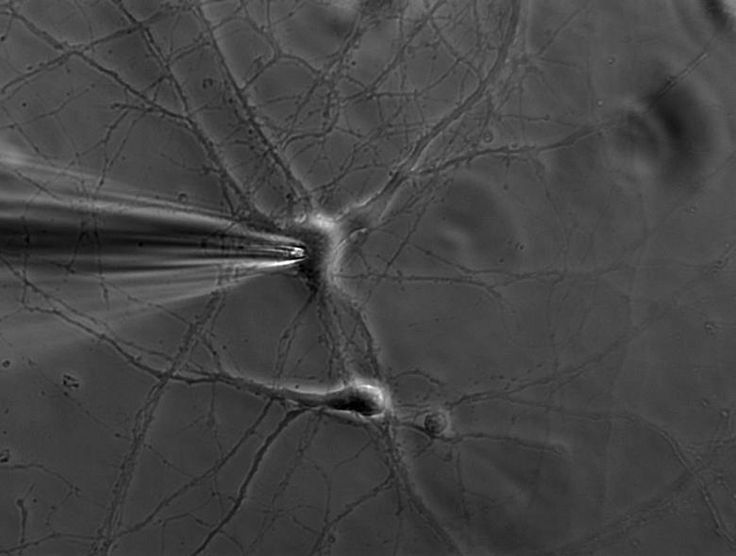 The Patch-Clamp Technique: Leica Science Lab Fig. 2: A phase contrast image of a patch pipette attached to the membrane of a cultured murine hippocampal neuron. Courtesy of Dr. Ainhara Aguado, Ruhr University Bochum, Germany