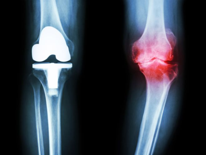 """Q&A: Is There A Remedy For """"Stiff"""" Knees?"""