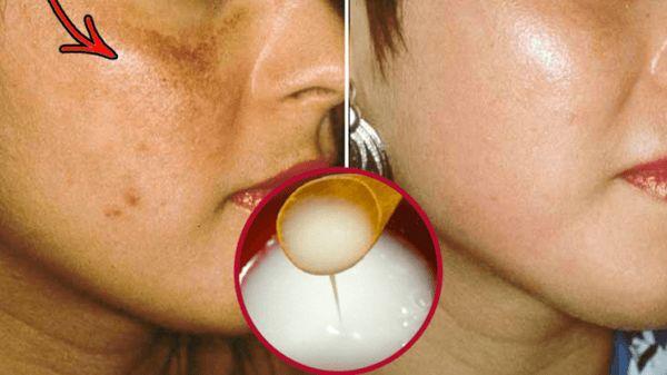 Despídete De Las Manchas Y Piel Oscura Con Esta Fórmula Casera… | Salud con Remedios