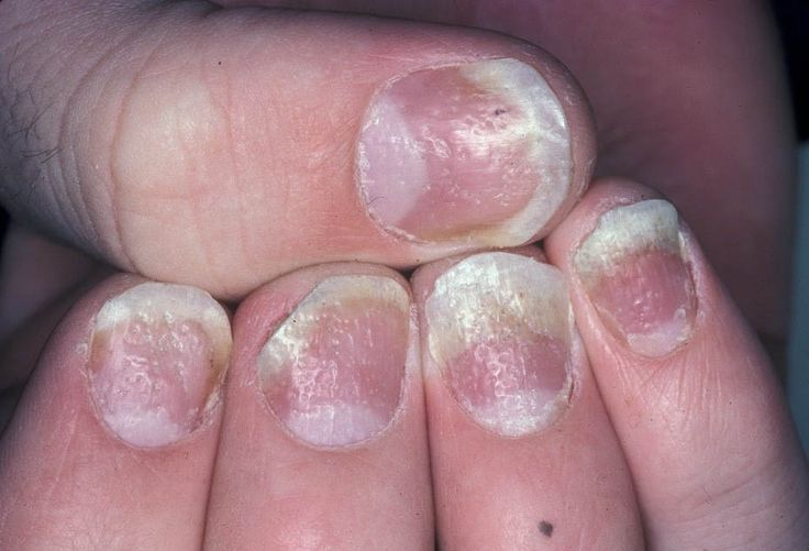 Psoriasis of the nail often appears like lumps and pits 3