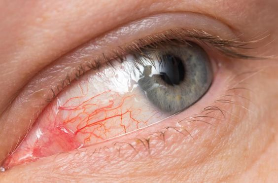 Conjunctivitis is not the only contagious ocular infection: styes are too, and very easy to contract, having unpleasant symptoms. To get rid of eye infections, doctors usually recommend eye drops and antibiotic ointments, and serious cases require surgery. But ocular treatments can be natural, too that can prevent and cure a stye or pink eye, …