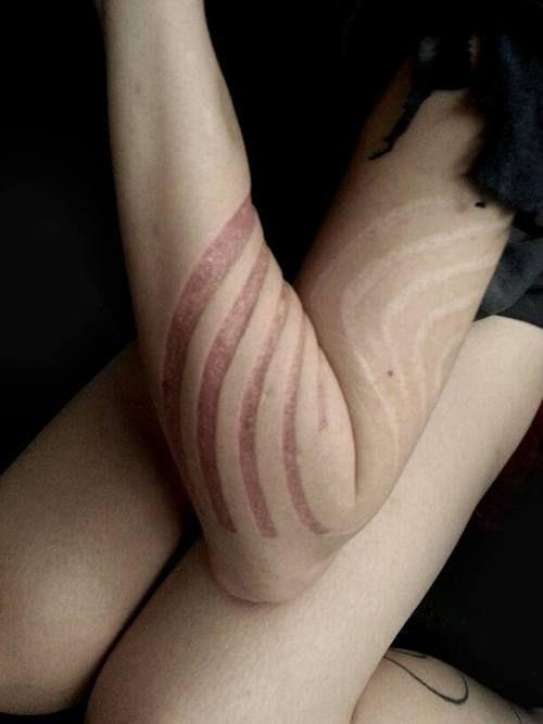body-mod-universe:  Skin removal by :Yann Brënyàk http://wiki.bme.com/index.php?title=Skin_Removal