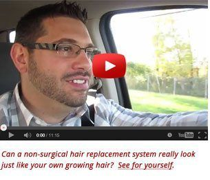 Hair Restoration San Diego – Orange County California #san #marcos #treatment #center http://columbus.nef2.com/hair-restoration-san-diego-orange-county-california-san-marcos-treatment-center/  # Hair Restoration San Diego Orange County Hair Loss Treatment Solutions Dermatex: Proven Hair Loss Solutions for Men Women Dermatex Hair Restoration professionals have been helping men and women with thinning hair and hair loss in the San Diego and Orange County region for over 27 years. Whether its…