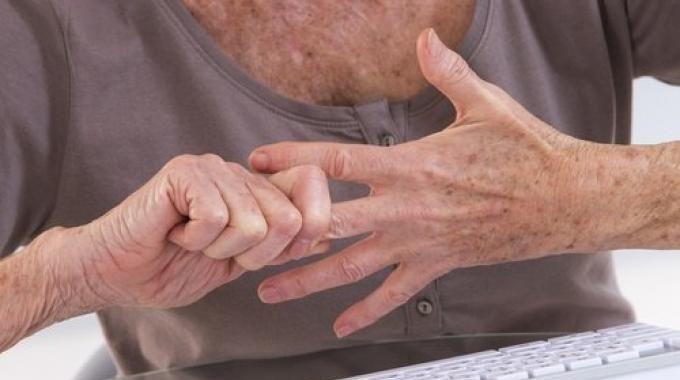 6 Remèdes pour Soulager l'Arthrose et Toute Douleur Inflammatoire.