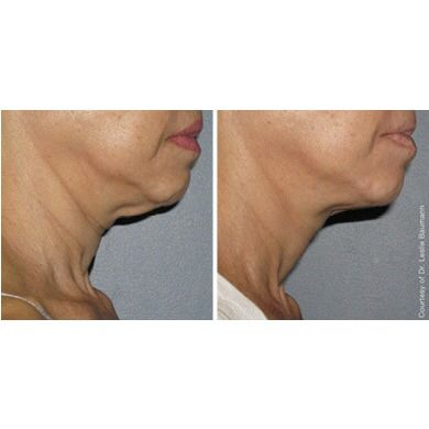 Ultherapy lifts and tightens saggy skin.