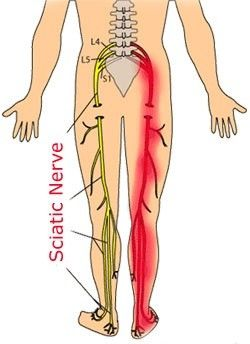 The sciatic nerve is one of the largest nerves of our body. It runs all the way down from the lower spine over the buttock to both feet to provide movement, feeling, and strength in both legs. As many as 40% of all people will get sciatica at some point in their life. This is a condition which is often mistaken for lower back pain or leg cramps. But it actually is something that puts pressure or pinches the nerve and fires pain down your back or thigh to your legs. The pain can vary from a…