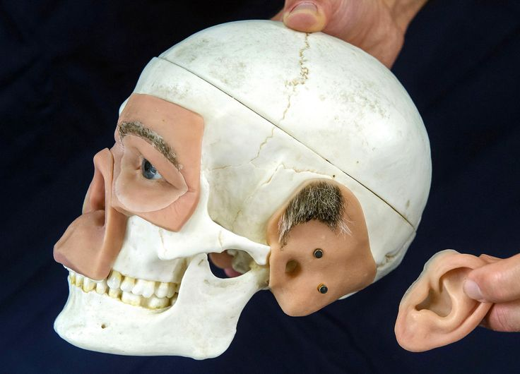 An exhibitor presents a skull model with 3D-modeled prostheses during the FabCon 3.D fair in Erfurt, Germany, on June 20. At the fair, 206 exhibitors from all over the world presented the latest products and applications in the fields of additive manufacturing and 3D printing..