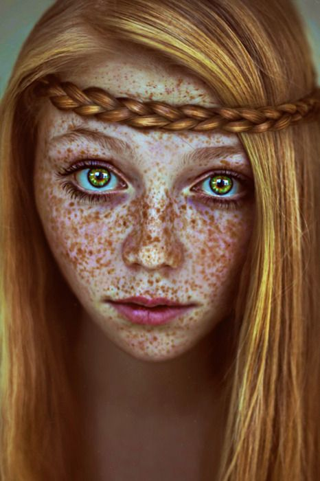 Holy Smokes She Has A Lot Of Freckles And You Thought