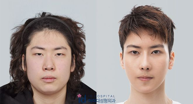 Korean Man Face Plastic Surgery Chin Lips And Nose Before And After Face Plastic Surgery Plastic Surgery Korean Plastic Surgery