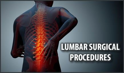 San Antonio Laser Spine commits itself to staying at the head of the latest practices and procedures when dealing with minimally invasive neck surgery, spine surgery, and back surgery.
