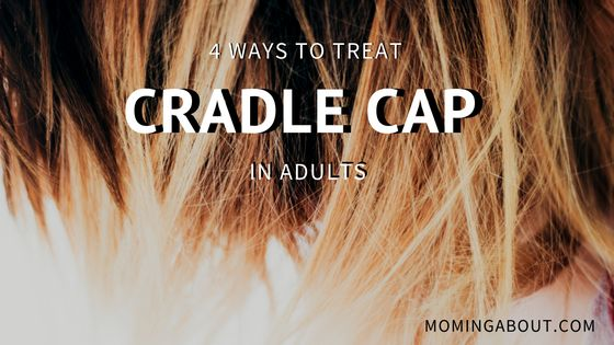 1000 Ideas About Cradle Cap On Pinterest Infant Boy