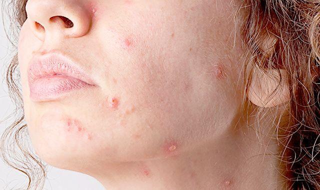 Imuran Side Effects Skin Cancer
