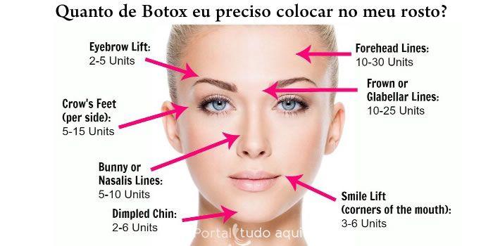 quanto de botox é usado em cada parte do rosto