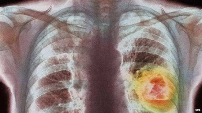 SOK KOJI UBIJA RAK: GOTOV ZA SAMO PAR MINUTA – Prirodna Medicina