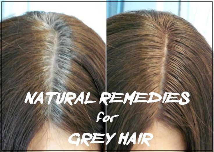 Grey hair can be a nightmare, especially for women. This is a universal and widespread problem that occurs when melanocytes around the hair follicle reduces the amount of melanin it produces (or stops completely). The hair is mainly made from a protein called keratin, and as the hair grows, the melanocytes around the hair follicle ...