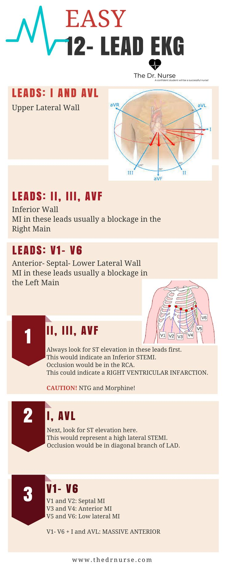 146 Best Cardio Blood Images On Pinterest Cardiac Nursing Simple Brain Diagram Labeled Frompo Use These Three Easy Steps To Learn 12 Lead Ekg Interpretation More Like This