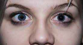 Dilated Pupils: Check Your Symptoms and Signs