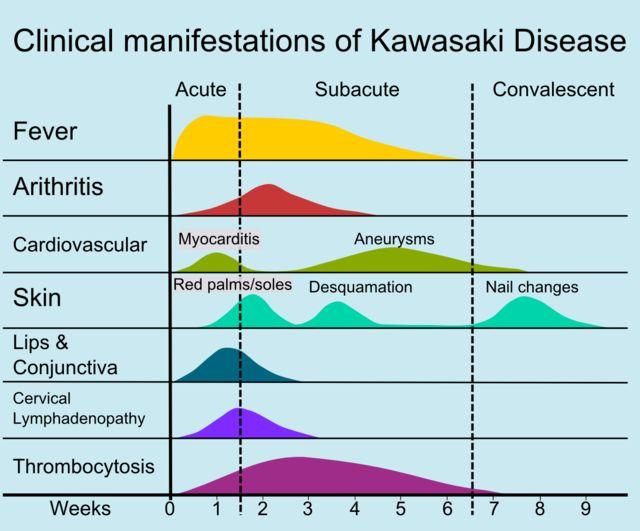 Kawasaki Disease Pathophysiology Clinical Manifestations And Management