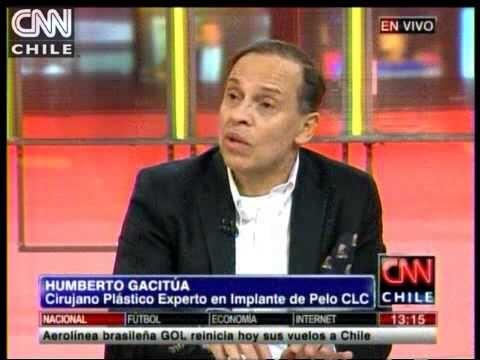 Cirujano se refirió al medicamento que podría sanar la alopecia   CNN Chile