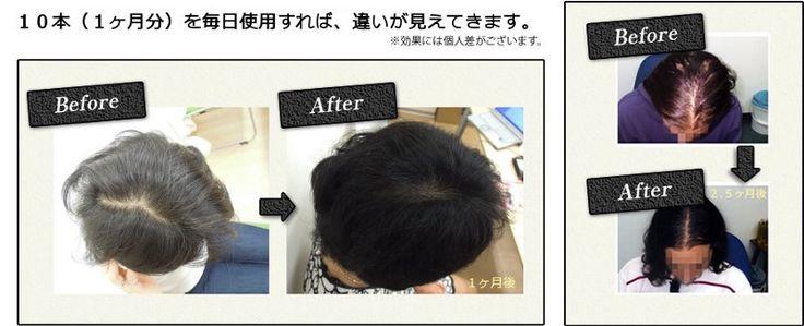 HairUpは、最も要求の有望されています育毛女性用そして新しい毛包を発芽するために頭皮に自然療法を提供する男性。むしろ化学ベースの製品を適用する天然ハーブ治療を信じるすべての人々は、製品への信頼の百分の一を与え、一度それを使用する必要があります。