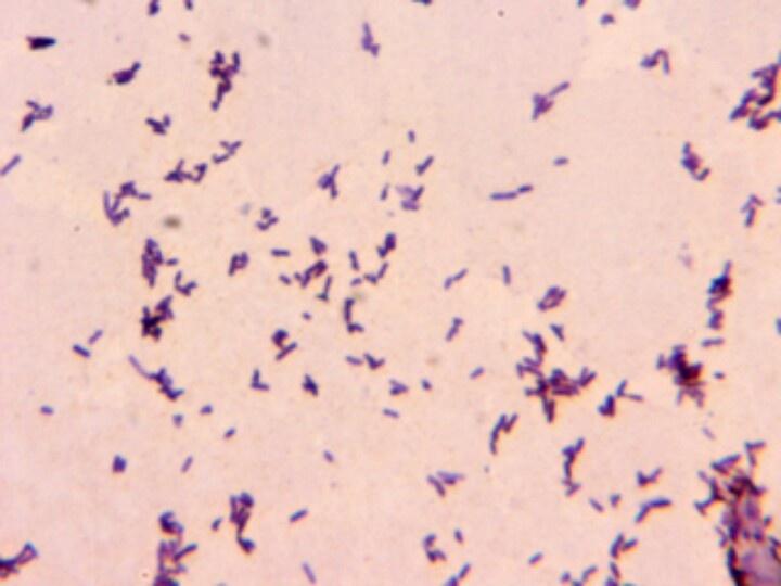 novel mouse model of chronic pseudomonas aeruginosa lung infection