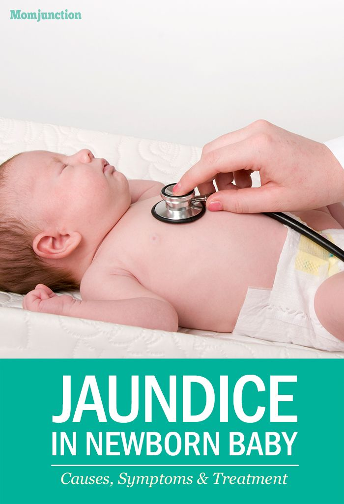 Jaundice In Newborn Baby - Causes, Symptoms & Treatment ...