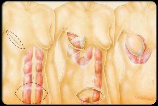 Perawatan Kanker Payudara pada Wanita - BUGAR JIWA DAN RAGA