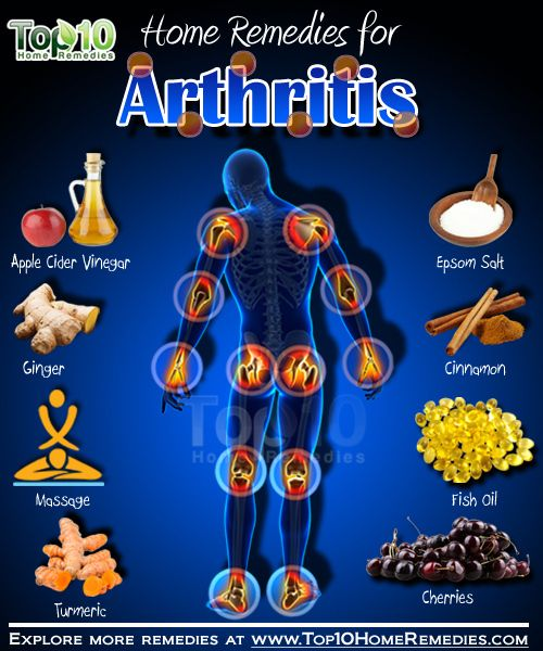 Learn as much as you can about the disease. The more you know about the symptoms and treatments for arthritis, the more of an active role you can play in your treatment plan. It can also help you to feel less alone, to read about what others with the condition are going through and what they've been trying. Maintain a healthy weight.... FULL ARTICLE @ http://www.101arthritis.com/what-the-experts-have-to-say-about-arthritis-5/?a=077