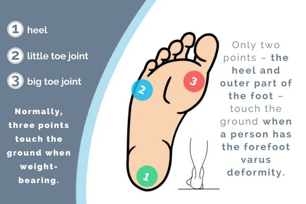 What You Can Do If You Have Forefoot Varus |   SUMMARY: Not familiar with the forefoot varus deformity? Read on to know more about this foot deformity and how you can correct it. |