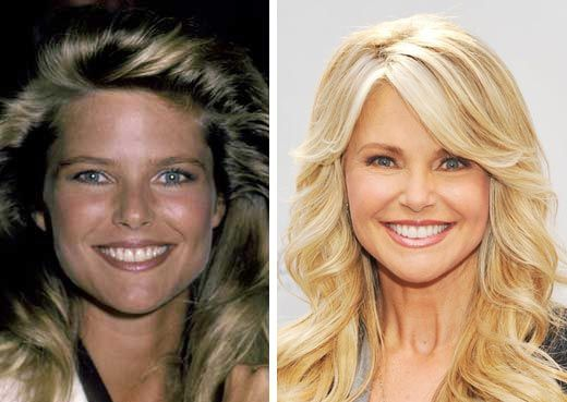 Christie Brinkley Plastic Surgery - A Facelift Done Well - http://plasticsurgerytalks.com/christie-brinkley-plastic-surgery/