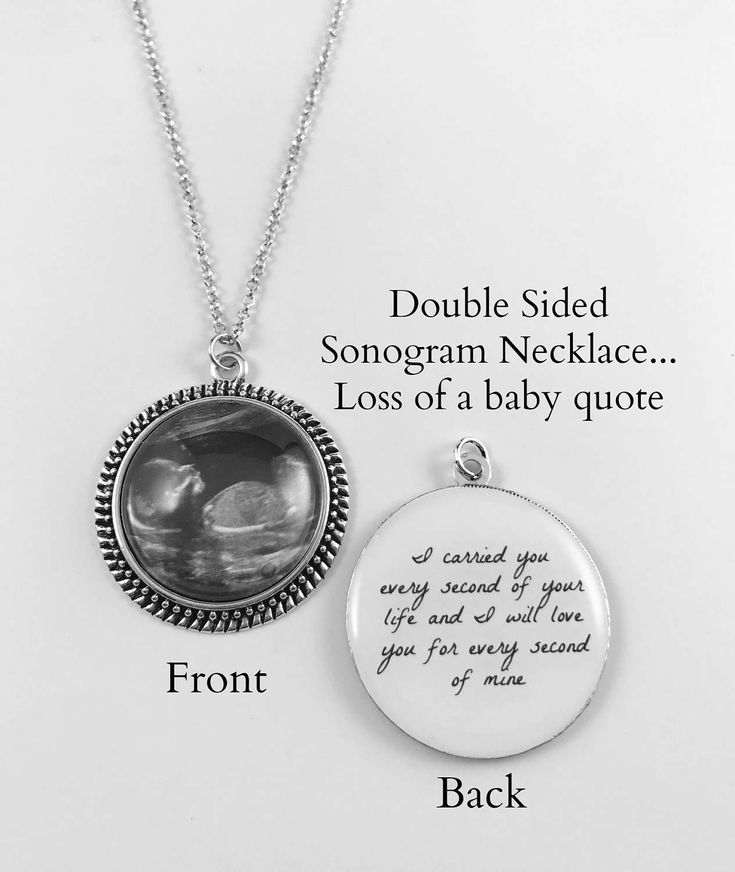 Double Sided Pendant Necklace or Keychain - Sonogram/Photo on front - Quote on back - 5 finishes - Miscarriage Jewelry - Loss of Baby by ChutneyBlakeDesigns on Etsy