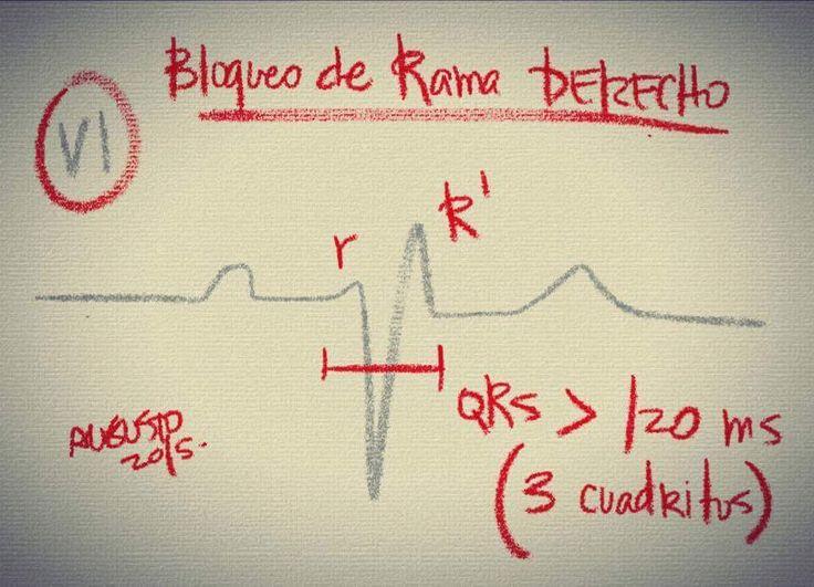 Aprende Electrocardiograma de una manera muy fácil - La Biblioteca Médica